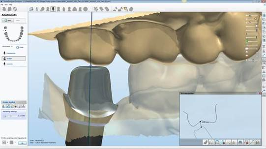 Custom Abutment Design